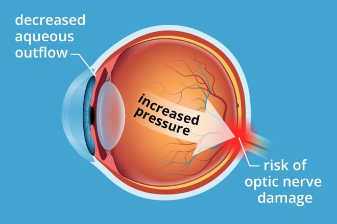 What Causes High Eye Pressure and How to Reduce it