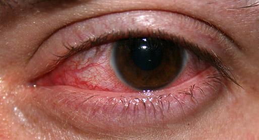 home remedies for scratched eye