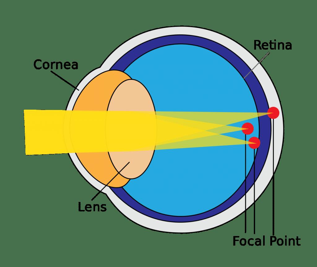lens for astigmatism