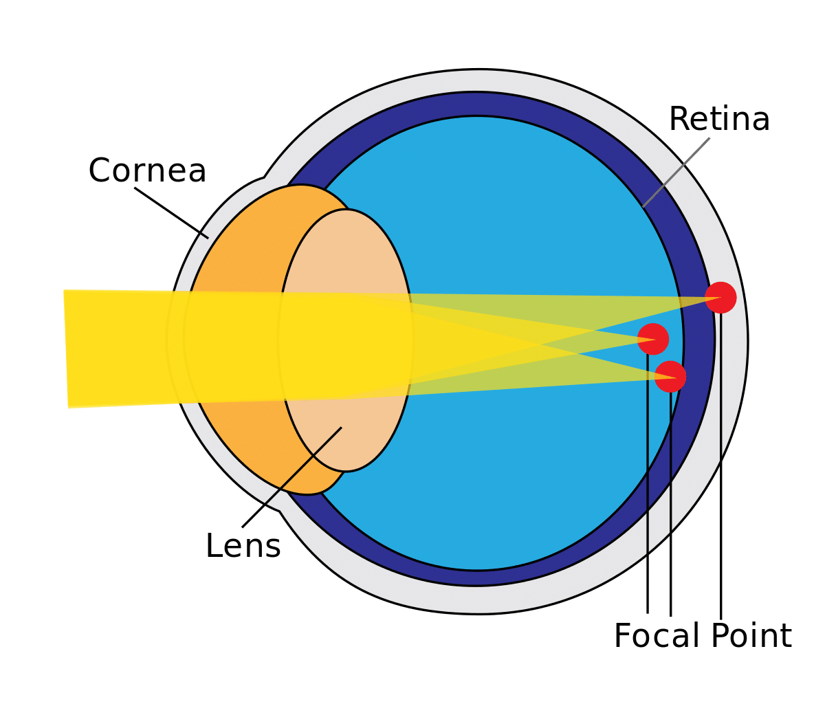 Finding the best lens for astigmatism of your eye