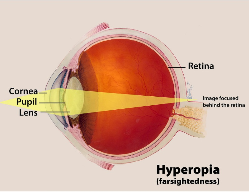 Hyperopia with Astigmatism