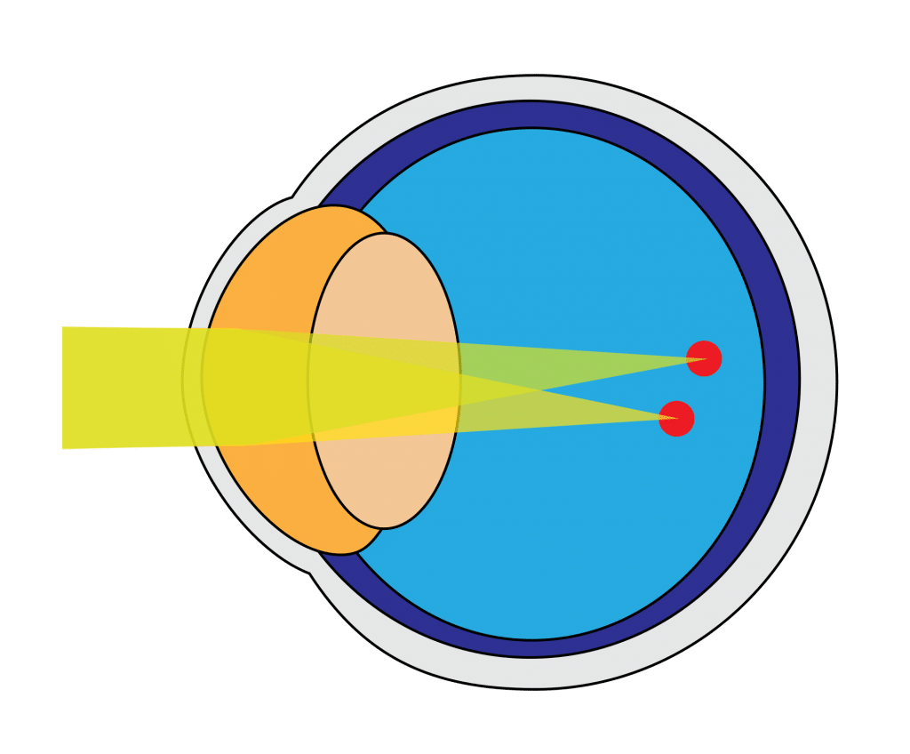types of astigmatism