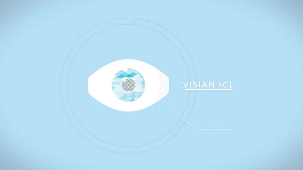 Visian ICL Review