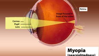 Myopia vs Hyperopia