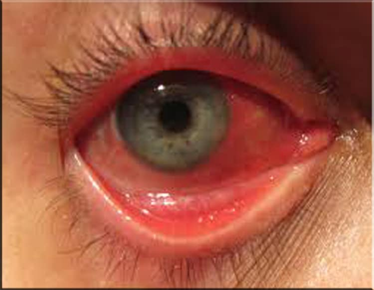 Essential Oils For Pink Eye-Do They Really Work?