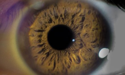 10 Eye Conditions That Provide Clues To Your Overall Health