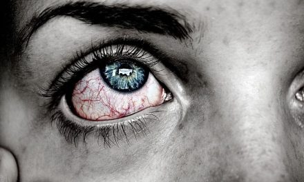 How To Stop Eye Twitching | Causes And Remedies