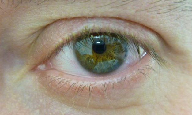 What Causes Eye Floaters And How To Get Rid Of Them