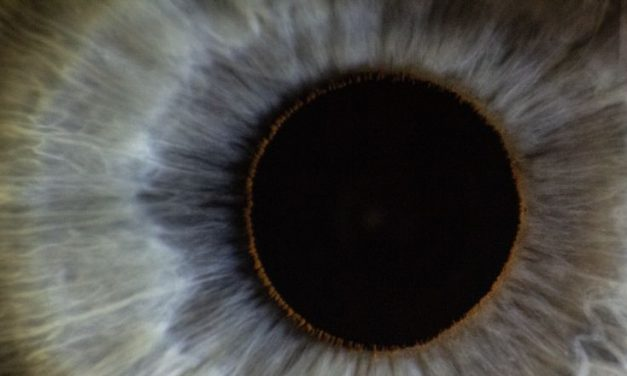 Are Eye Floaters Dangerous Or Harmless?