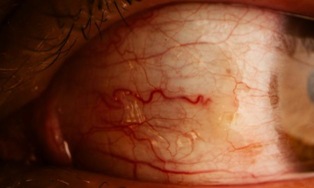 Eye Redness With Pain: Causes And Treatments