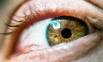 How To Reduce Eye Floaters Naturally? All Natural Remedies